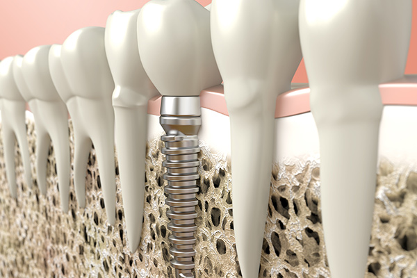 Ways A Dental Implant Is Better