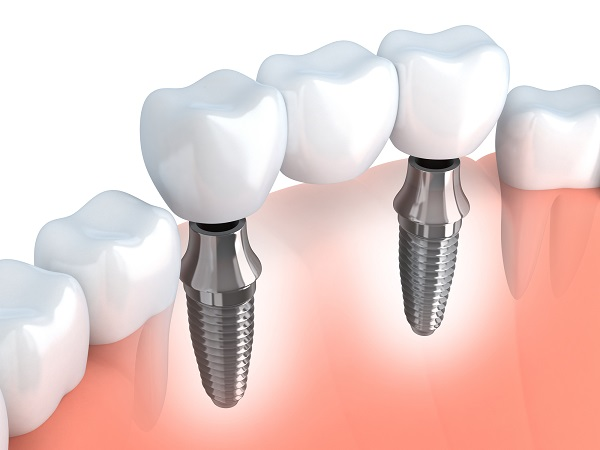 How Can Dental Implants Restore My Smile?